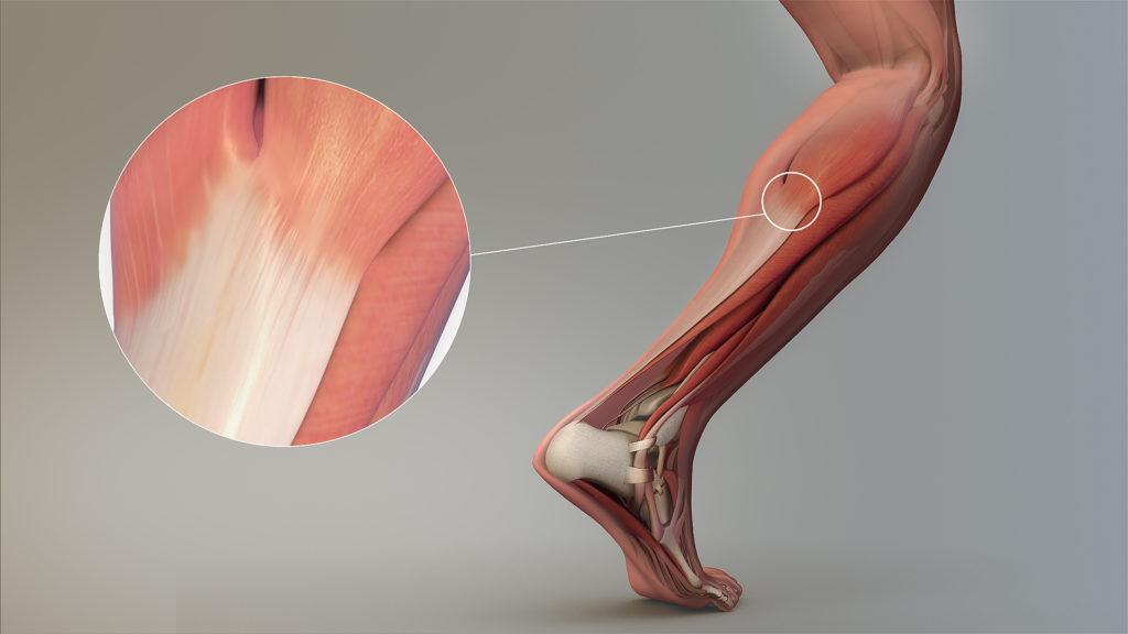 Rôle du tendon HAC